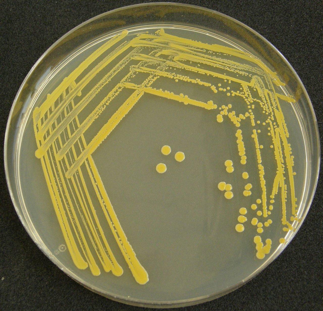 Colony Characteristics of EColi  Sciencing