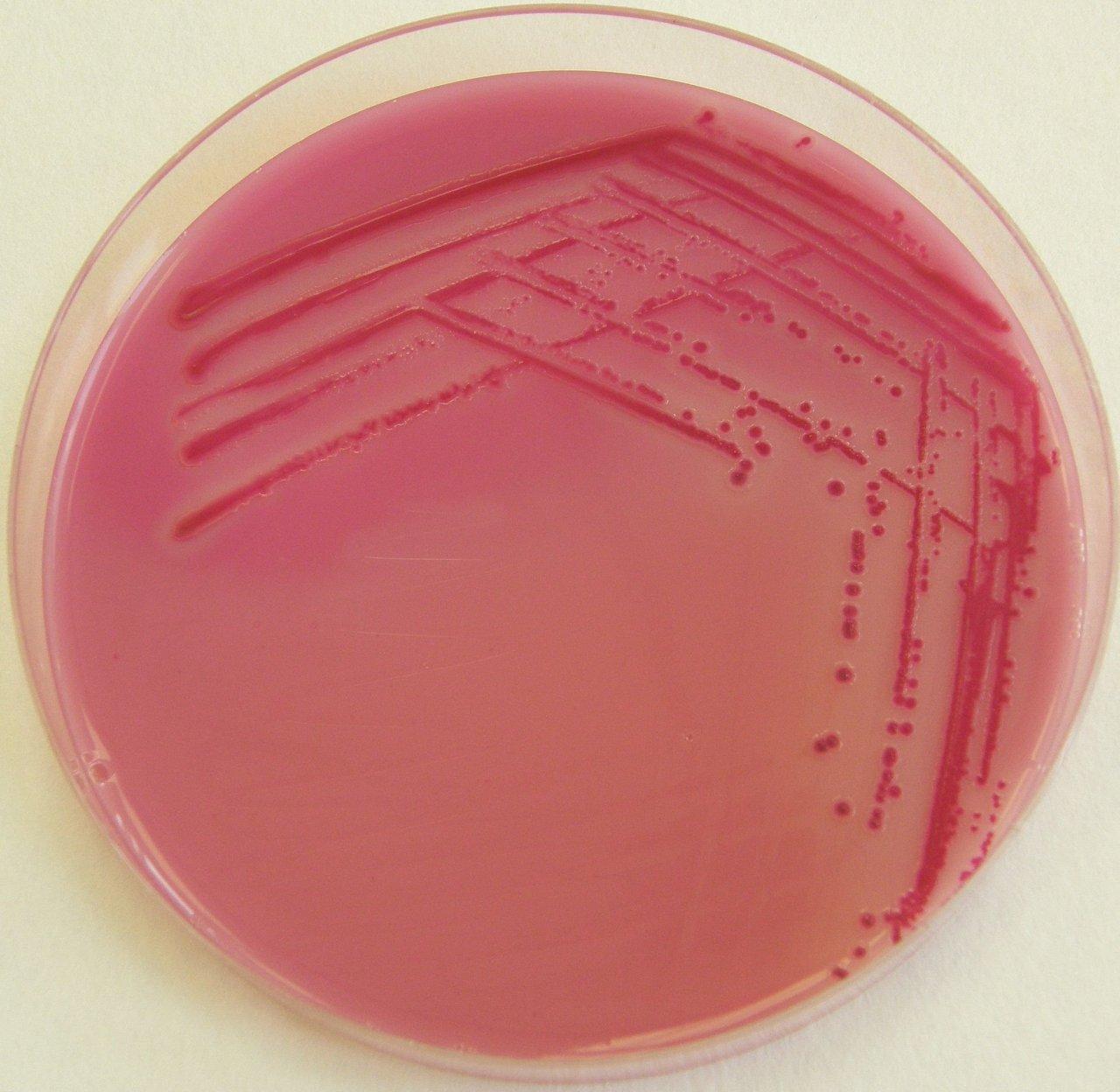 кейт придерживается картинки шигелл микробиология известна ролям таких